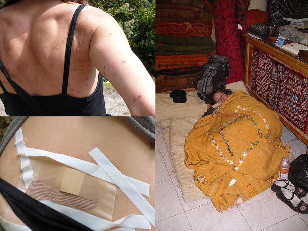getting sick while backpacking and hiking2